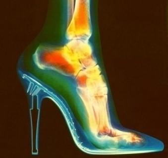 Los tacones altos acortan las fibras musculares de las mujeres